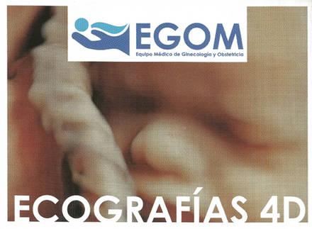 Ecografías 4D: un recuerdo inolvidable de tu embarazo gracias a EGOM